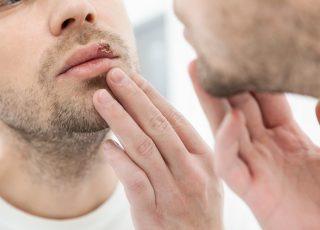dudağında genital herpes olan genç erkek erkek